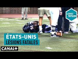 États-Unis : Lésions fatales épisode 2 - L'Effet Papillon – CANAL+